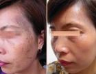 银川专业祛疤痕10元祛痘内调外治祛痘印黄褐斑雀斑老年斑签约