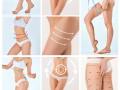 360 环形吸脂瘦腿优势 Aoy国际医美等你来