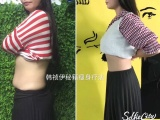 成都不用節食,不用運動,輕松減肥,不反彈,躺著也能瘦
