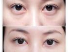 如何有效祛眼袋?