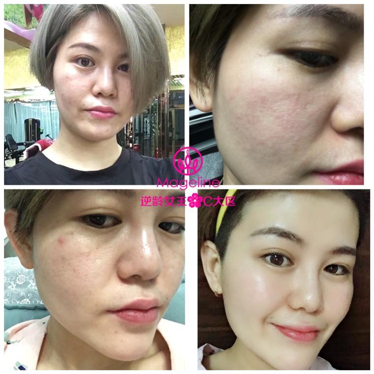 新疆麦吉丽护肤品代理的利润一般有多少