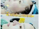 男士隆鼻有哪些方法上海星期二医美整形医院
