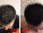 生发育发黑发怎么做互联网推广?哪些平台好?