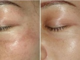 中山专业进口生产添加化妆品ODM原料哪个好用
