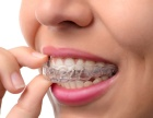 长春隐形矫正的优势有哪些哪家医院矫正牙齿好--拜博口腔