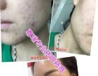 尊瑞专业祛斑祛痘 有效不反弹 安全可靠