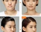 打瘦脸针会有副作用吗