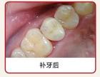 顺德哪家补牙医院专业?