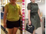 中药外敷,一疗程减肥10-35斤,不吃药,不反弹