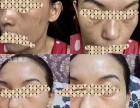 祛斑祛痘祛黄美白收缩毛孔