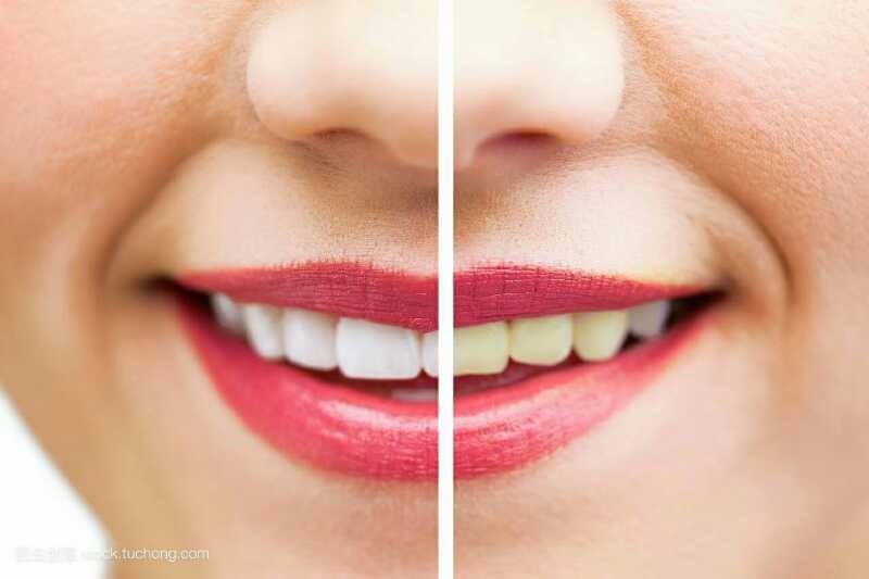 宗左美白牙齿怎么收费?私人订制小白牙无痛技术 白的自然 大方
