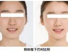 假体隆鼻的效果好不好?多少钱?