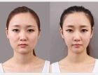 瘦脸针能维持多长时间?