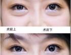 杭州美莱韩式双眼皮方法手术越来越受欢迎
