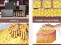 是什么原因使掌门人冯斌教授研发了无针吸脂呢? 北京掌门人