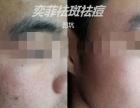 奕菲祛斑祛痘专业美容院项目免费加盟