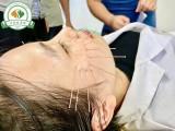 广州天河区传统中医针灸理疗全科系统培训 免费考康复理疗师证书