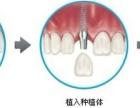 牙齿缺失后该怎么办