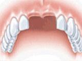 牙齿种植,大连市西岗区康贝佳口腔诊所有限公司种植牙成品