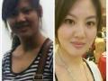 尚赫专业减肥不动刀的美容术