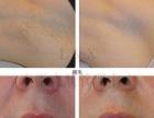 专业皮肤管理祛斑,除皱,祛红血丝,抗敏修复,脱毛