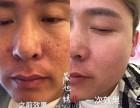 天津晟旭绣国际美业,祛斑祛痘,减肥瘦脸