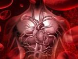微针定位取栓、微针定位负压提取血栓系统、中医微针定位负压清淤