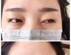 非手术永久双眼皮培训