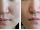 玉林激光治疗毛孔粗大会出现反弹现象吗?