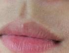女生怎样去唇毛如何抑制唇毛生长
