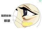 深圳嘉美医疗美容吸脂去眼袋的几个问题