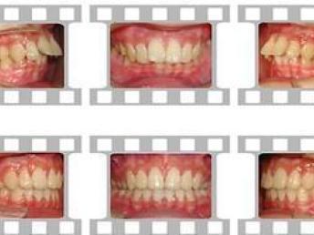 私人口腔医院矫正加价_牙齿矫正图片