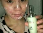皮肤过敏了怎么办?