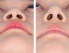 AOY国际微整 韩式隆鼻术后护理,一定要知道!不要酿成大错