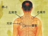 乳腺结节如何应对 如何应对淋巴结肿大 民间中医欢迎咨询