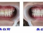 上海牙科氟斑牙的危害主要有哪些