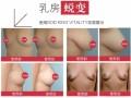 SODKV胸膜:丰胸革新技术横空出世