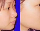 线雕隆鼻880元玻尿酸免费送瘦脸针优惠美白针瘦腿针