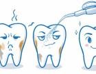 洗牙会伤害牙釉质 对牙齿造成损害吗