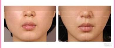 哈尔滨夏天注射botox需要注意什么呢?