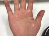 手汗星人手心汗多是腎虛嗎重要成分533止汗噴霧有用
