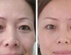 德州手术祛眼袋哪家做得技术好德州韩绣整形祛眼袋首选
