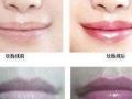 纹唇线的术后护理