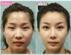 双眼皮修复手术价格为什么越来越高呢?