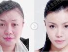 上海下颌角祛除术黄大勇院长