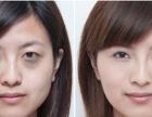 怎样才能快速有效的去除黑眼圈呢?