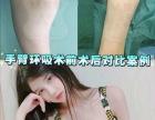 岳阳2019十大前三正规微整形培训学校