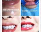嘉兴私人订制小百牙,成长从齿健康开始,美丽自信从齿开始