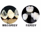 如何选择使用烤瓷牙还是全瓷牙 长春烤瓷牙价格表 拜博口腔