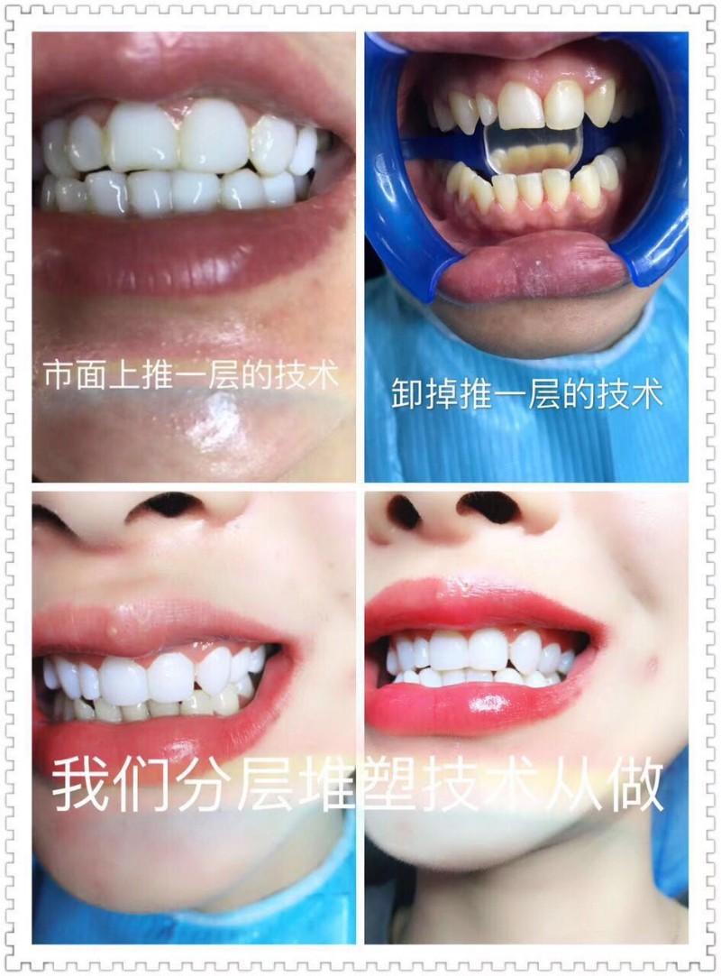 保定地区私人订制美白牙齿 让你和明星一样的美丽牙齿